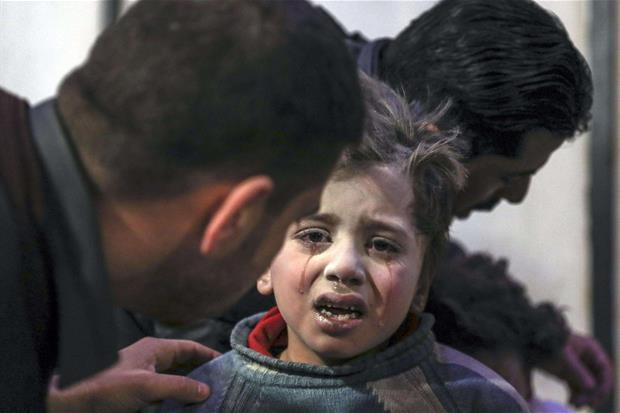 Un bambino ferito viene curato all'ospedale di Douma, nell'est di Ghouta (Ansa)
