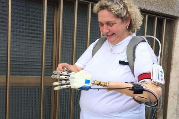 Ancora Almerina, a passeggio con la mano bionica e lo zaino che contiene la tecnologia che la comanda