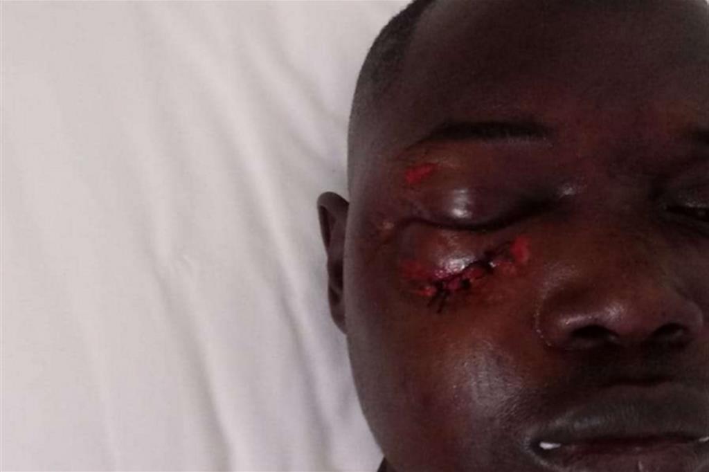 Il volto tumefatto di Kemo Fatty dopo l'aggressione con una pietra