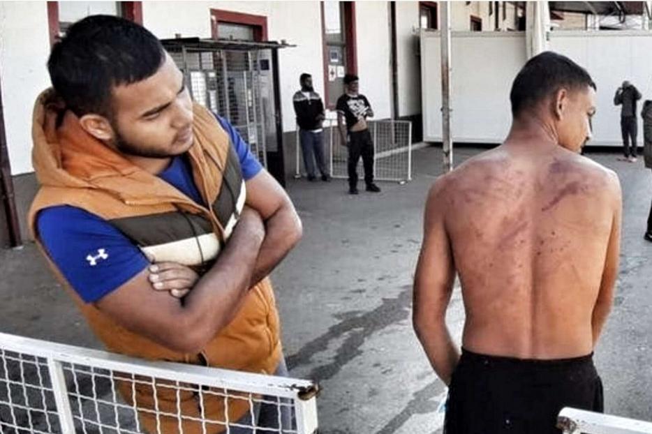 Un migrante con i segni delle percosse