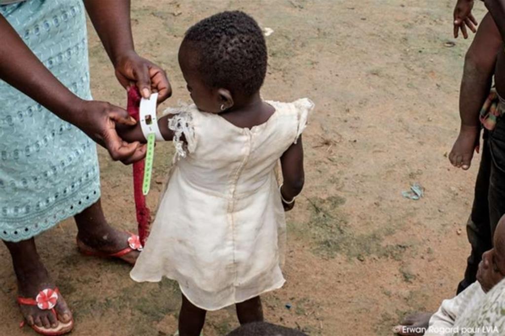 Se la circonferenza del braccio è inferiore a 115 mm, si tratta di malnutrizione acuta severa (MAS): il bambino viene portato al più vicino ambulatorio e curato. I casi più gravi vengono indirizzati all'unico ospedale della regione in cui c'è un pediatra -