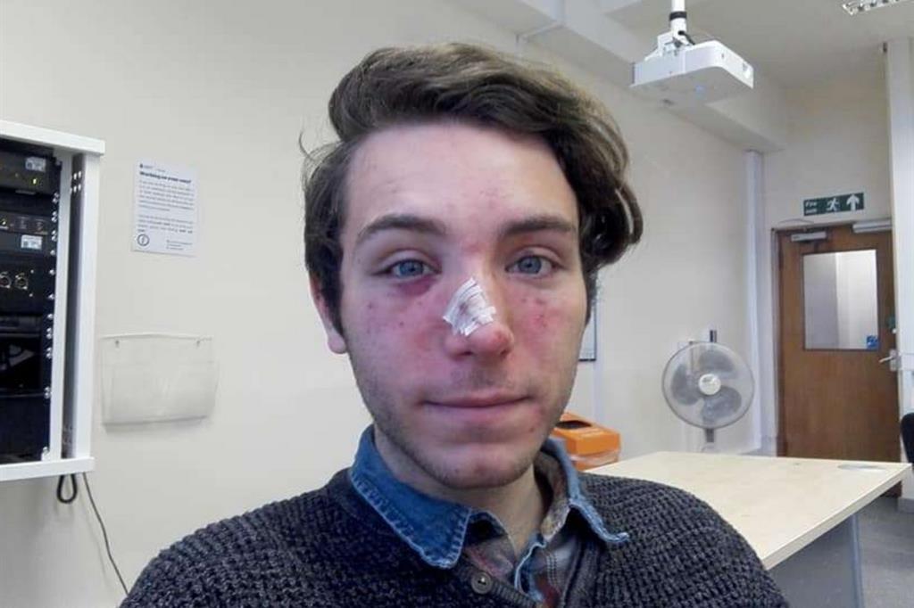 La foto di Marzio Fagioli ferito