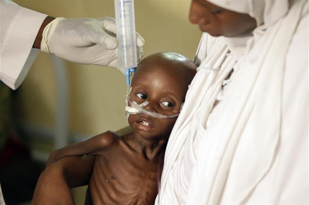 Bimbo in condizioni estreme in un centro nutrizionale di Msf a Maiduguri, nel nord della Nigeria
