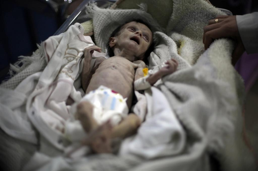 Un bimbo gravemente denutrito nella regione della Ghouta alle porte di Damasco in Siria