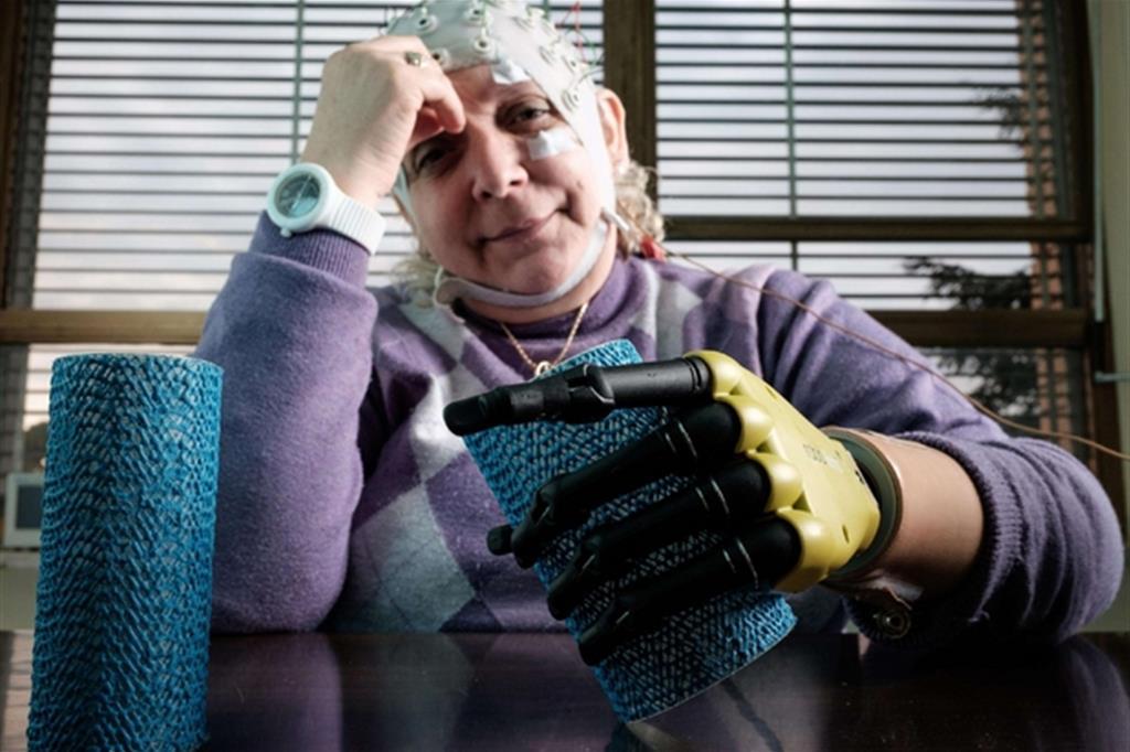 Almerina Mascarello, la 55enne con la mano bionica. L'esperimento, che è durato 6 mesi, si è appena concluso: a maggio la donna avrà una prototipo tutto per sé
