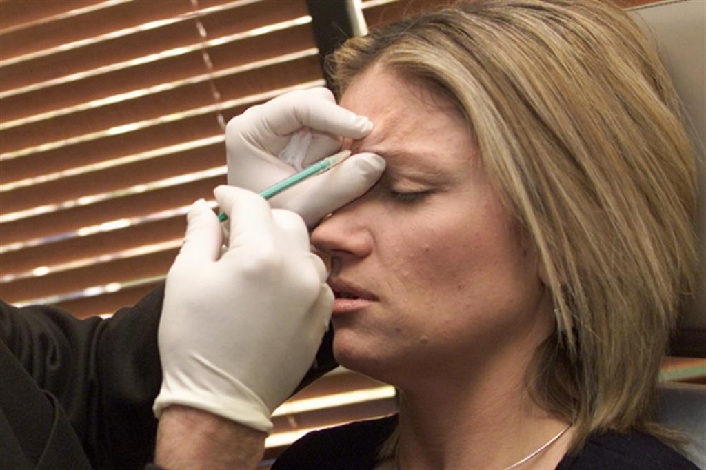 AbbVie acquisisce Allergan produttore di Botox