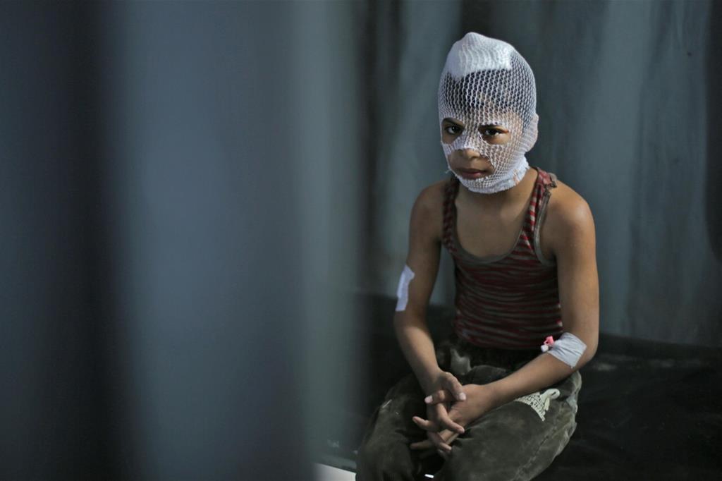 L'immagine choc di un bimbo ferito durante i bombardamenti su Idlib, Siria