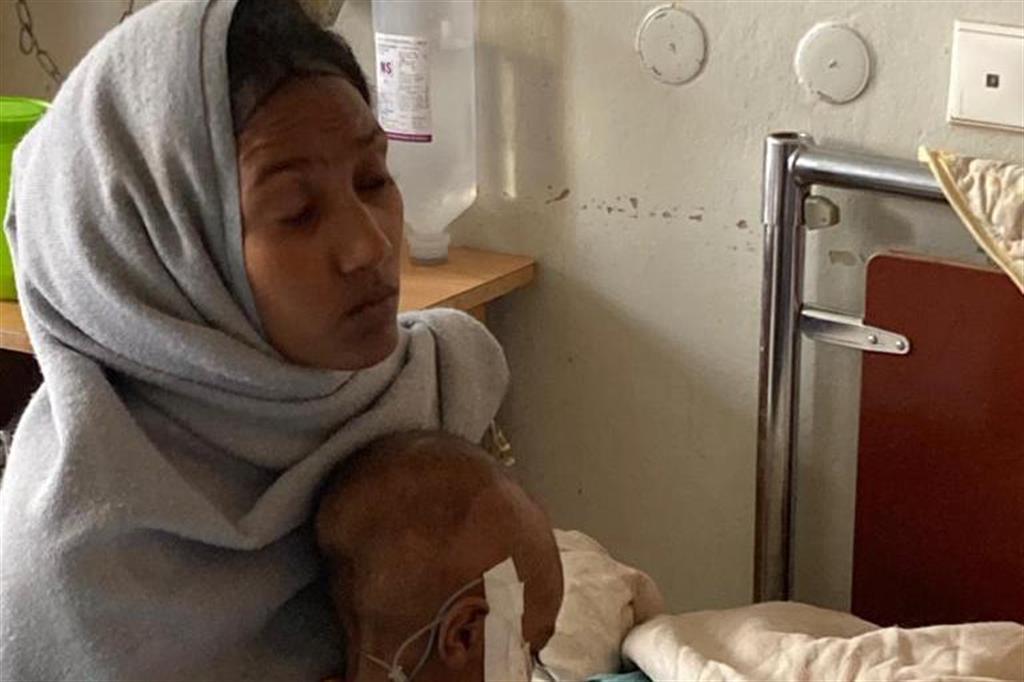 Una mamma con il suo bambino ricoverato all'Ayder hospital di Macallè, capoluogo del Tigrai, per malnutrizione. Da mesi si ripetono gli allarmi di Ong e organismi umanitari dell'Onu sulla carestia nella regione settentrionale etiope  che sta falcidiando i più poveri - Foto concesse dall'Ayder hospital