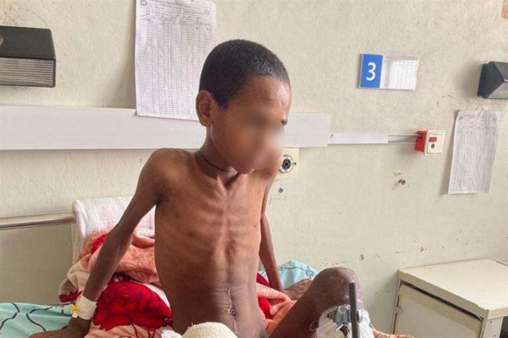Un paziente di 10 anni, uno dei 22 ricoverati per malnutrizione acuta. Secondo gli esperti Onu, la situazione della malnutrizione in Tigrai è senza precedenti. L'ultimo report delle Nazioni Unite del 29 settembre rivela che l'80% delle 15 mila donne incinta o che allattavano  visitate era afflitta da malnutrizione acuta - Foto concesse dall'Ayder hospital
