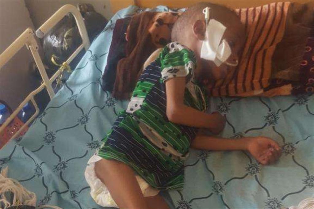 I casi di malnutrizione grave sono esplosi a giugno a Macallè, ci conferma  Mohammed Mustefa, capo dipartimento di pediatria all'Ayder. Dal 2015 al 2020, prima del conflitto, i casi erano molto rari. Poi il conflitto e il blocco degli aiuti hanno fatto precipitare la siutaizone - Foto concesse dall'Ayder hospital