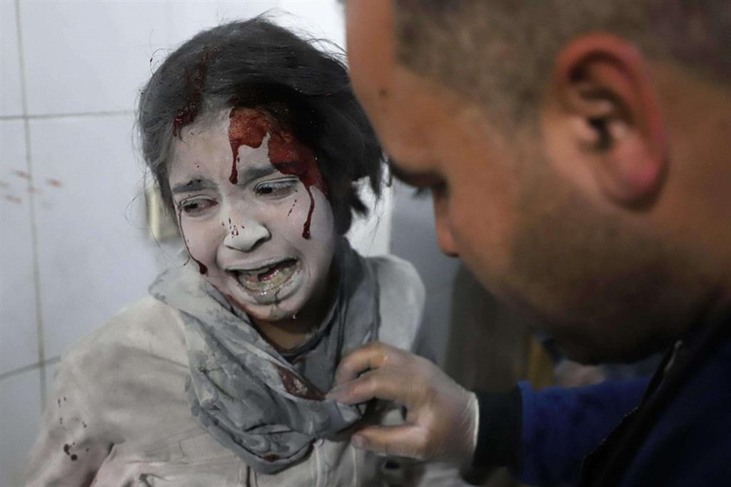 Choc - Bimba impaurita in un  centro medico nel Ghouta, 2018 alle porte di Damasco - Ansa